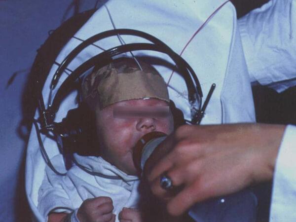 Λήψη Ακουστικών Προκλητών Δυναμικών Εγκεφαλικού Στελέχους σε βρέφος.