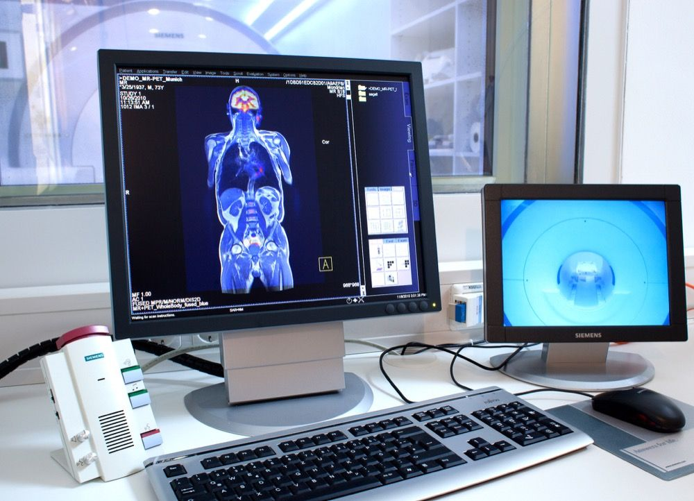 PET|CT: A STATE-OF-THE ART SCANNER